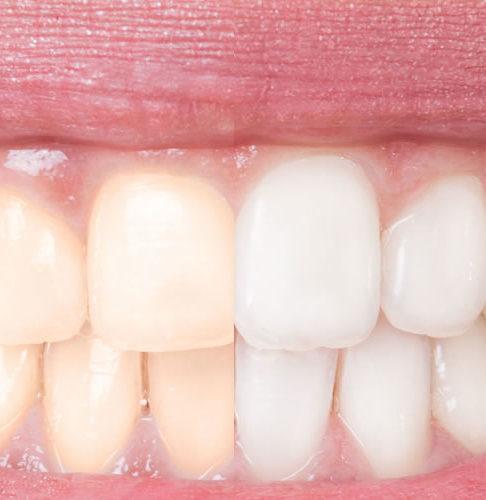 Euthalia-tanden-bleken
